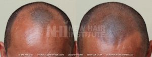Scalp MicroPigmentation - New Hair Institute - Bold, Shaved Look - Patient 1