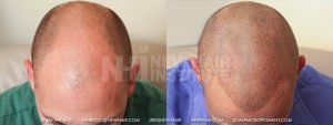 This young man had a Norwood Class 5A balding pattern. His hair was 'fine' in character and had he chosen hair transplants to cover the entire balding area, it would probably have taken two procedures, 8 months apart. Instead, he underwent scalp micropigmentation and achieved this result at the first sitting with us. He required two more sessions for touch-ups.  Keeping his head shaved turned out to be a better, less expensive route than hair transplantation for him and the cost was less and the timeline to completion was faster.