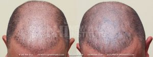 Scalp MicroPigmentation - New Hair Institute - Bold, Shaved Look - Patient 4a