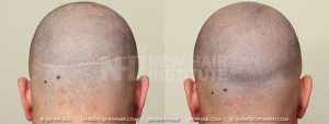 Scalp MicroPigmentation - New Hair Institute - Scalp Scars - Patient 5b
