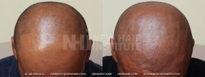 Scalp MicroPigmentation - New Hair Institute - Bold, Shaved Look - Patient 6
