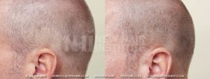 Scalp MicroPigmentation - New Hair Institute - Scalp Scars - Patient 7a