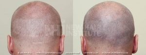 Patient has two hair transplant producing the scars as shown which were successfully camouflaged with scalp micro pigmentation. He was fortunate that there were not elevations or depressions on the scar which would still show if they were present.