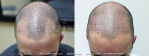 Scalp MicroPigmentation - New Hair Institute - Bold, Shaved Look - Patient 8