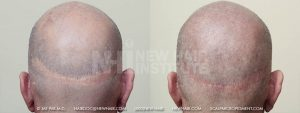 Scalp MicroPigmentation - New Hair Institute - Scalp Scars - Patient 9b