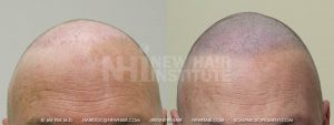 Scalp MicroPigmentation - New Hair Institute - Bold, Shaved Look - Patient 10a