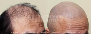 Scalp MicroPigmentation - New Hair Institute - Bold, Shaved Look - Patient 11a