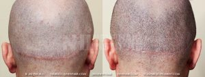 Scalp MicroPigmentation - New Hair Institute - Scalp Scars - Patient 11b