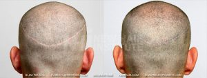 Scalp MicroPigmentation - New Hair Institute - Bold, Shaved Look - Patient 17