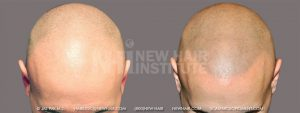 This young man had generalized thinning in the front of his head. He hated his look and felt his Class 5A balding made him look older. Scalp micropigmentation with a shaved head seemed to solve his problem. He now looked his age.
