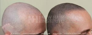 Scalp MicroPigmentation - New Hair Institute - Bold, Shaved Look - Patient 20b