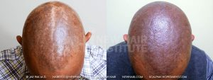Scalp MicroPigmentation - New Hair Institute - Bold, Shaved Look - Patient 21ba