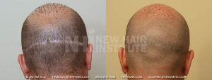 Scalp MicroPigmentation - New Hair Institute - Scalp Scars - Patient 24