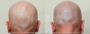 Scalp MicroPigmentation - New Hair Institute - Bold, Shaved Look - Patient 26b