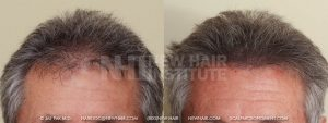 Scalp MicroPigmentation - New Hair Institute - Thinning Hair - Patient 27a