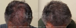 This man had many hair transplant procedures and essentially ran out of donor hair. He like his results but he wanted a fuller look and more hair transplants were not practical to solve the fullness issue. Scalp micropigmentation solved the problem and his hair looked much fuller, even in bright light. Scalp micropigmentation is an excellent solution for people with thinning hair, even post hair transplant surgery, but this is not hair, just the illusion of it.
