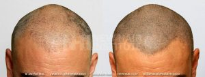 Scalp MicroPigmentation - New Hair Institute - Bold, Shaved Look - Patient 29a