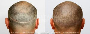 Scalp MicroPigmentation - New Hair Institute - Bold, Shaved Look - Patient 29