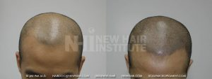 Scalp MicroPigmentation - New Hair Institute - Bold, Shaved Look - Patient 31