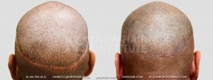 Scalp MicroPigmentation - New Hair Institute - Scalp Scars - Patient 32c