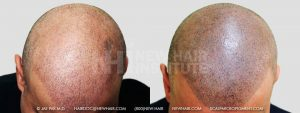 Scalp MicroPigmentation - New Hair Institute - Bold, Shaved Look - Patient 32b