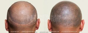 This patient had two surgeries. His balding pattern was advanced (Norwood Class 7 pattern) so in my opinion, he should never had received any surgery as the balding area had more demand for hair than the donor had supply. Instead of making one scar, his surgeon made two of them leaving him with a problem he should not have. The upper scar showed through his when he let his hair grow out. Scalp micropigmentation seemed to address the scarring and when his entire head received scalp micropigmentation, he could shave his head and look normal once again or let his hair grow out and not worry about the detectability of his upper scar. Again, I am embarrassed that any hair transplants would have been done on this patient.