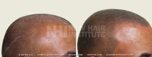 Scalp MicroPigmentation - New Hair Institute - Bold, Shaved Look - Patient 33b