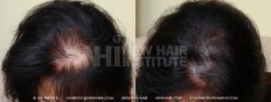 Scalp MicroPigmentation - New Hair Institute - Thinning Hair - Patient 35