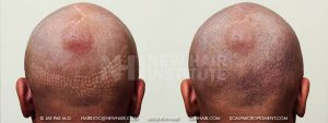 Scalp MicroPigmentation - New Hair Institute - Bold, Shaved Look - Patient 36a