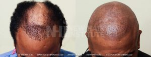 Scalp MicroPigmentation - New Hair Institute - Bold, Shaved Look - Patient 36b
