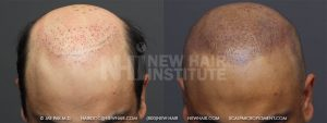 Scalp MicroPigmentation - New Hair Institute - Bold, Shaved Look - Patient 37a