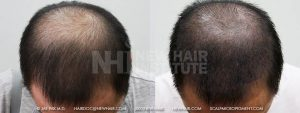 Scalp MicroPigmentation - New Hair Institute - Thinning Hair - Patient 42