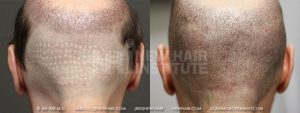 Scalp MicroPigmentation - New Hair Institute - Bold, Shaved Look - Patient 43