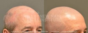 Scalp MicroPigmentation - New Hair Institute - Bold, Shaved Look - Patient 44