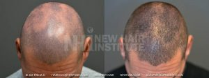This patient had a disease called Alopecia Areata, which left him with bald patches throughout the scalp. Men are lucky in this regard as shaving his head is an option. For women with this disease, shaving the head is not a good option. The picture shown here after the scalp pigmentation was done showed his hair growing out. He was experimenting with styling, allowing his hair to grow out. The bald patches were well camouflaged when he shaved his head and let his hair grow out further. Many of our patients test out letting their hair grow out to see what they can do. They often go back to the shaved look.