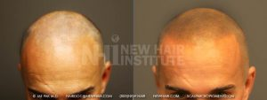 Scalp MicroPigmentation - New Hair Institute - Bold, Shaved Look - Patient 71b
