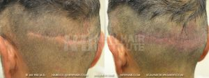 Scalp MicroPigmentation - New Hair Institute - Scalp Scars - Patient 54