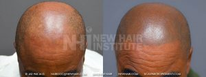 Scalp MicroPigmentation - New Hair Institute - Bold, Shaved Look - Patient 65b