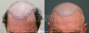 Scalp MicroPigmentation - New Hair Institute - Bold, Shaved Look - Patient 66b
