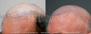 This middle aged man had hair transplants that never met his expectations, so he had a Hair System (wig) which he wore for many years. Note the white scalp which never received sun as the wig covered that area. The old fashion plugs are also evident in his before picture. SMP worked well for camouflaging his plugs and scars as shown in the picture. On close examination you can still see the plugs particularly in bright light. SMP helps a great deal but the results can never undo what was done in the past. He was thrilled when he saw a comparison photograph from before the SMP was done.