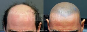 Scalp MicroPigmentation - New Hair Institute - Bold, Shaved Look - Patient 71a