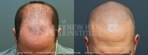 Scalp MicroPigmentation - New Hair Institute - Bold, Shaved Look - Patient 72b