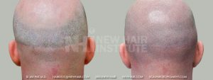 Scalp MicroPigmentation - New Hair Institute - Bold, Shaved Look - Patient 77b
