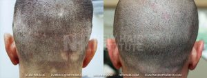 This patient had both Strip and FUE hair transplant surgeries. Many people call FUE a surgery without scarring, but you can see here, in the before picture, that there was scarring following FUE possibly because the surgeon may have used a large punch (we use a 0.9mm punch). This is not uncommon. Also, he had some other scars from scuffles when he was growing up. Compare the two scar types 9FUE and Strip surgeries). The after results from Scalp Micropigmentation is what we normally get in such patients.