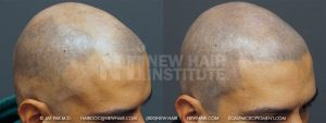 Young man in his 20s, with a Class 6 balding pattern that he does not like. Rather than have a hair transplant which would be more expensive and probably at least 2 surgical procedures, he went with scalp micropigmentation. He was very happy with the results.