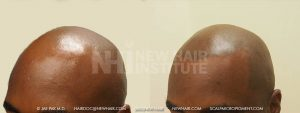 Scalp MicroPigmentation - New Hair Institute - Bold, Shaved Look - Patient 141b