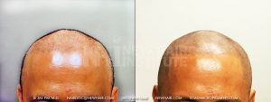 This young man had multiple hair transplants. The scalp micropigmentation process covered most of the scar including his scalp reduction scar (that is a scar that appears after the 'bald scalp of the crown area' is removed, a barbaric surgery). All of these scars were camouflaged. There is a gully in the mid-line of his scalp from the scalp reduction surgery which we could address when and if he wanted to do that. We could put fillers into the scar to make it flush with the rest of his scalp.