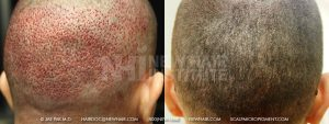 Scalp MicroPigmentation - New Hair Institute - Bold, Shaved Look - Patient 150