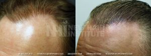 Scalp MicroPigmentation - New Hair Institute - Thinning Hair - Patient 152