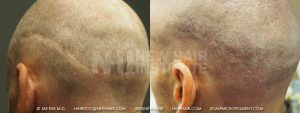 Scalp MicroPigmentation - New Hair Institute - Scalp Scars - Patient 153